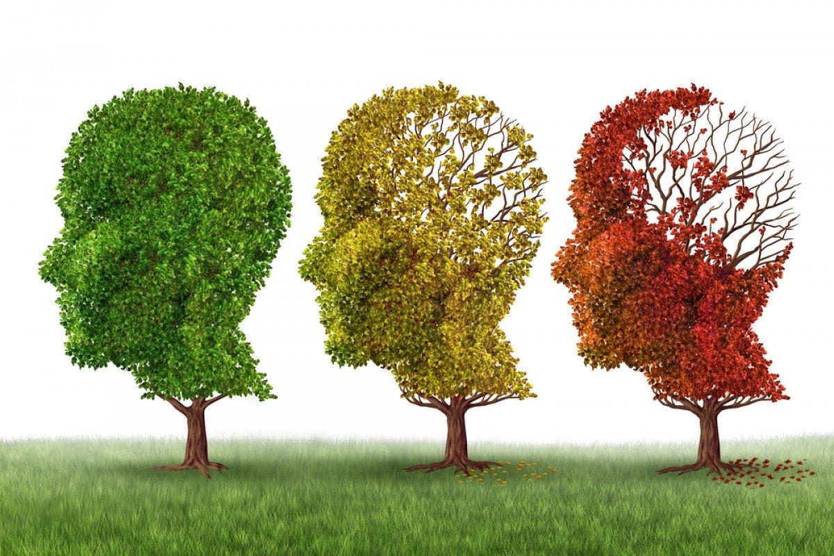 Resultado de imagen para alzheimer