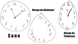 test reloj alzheimer